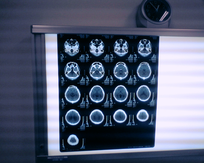 Brain scans displayed on an illuminated screen.