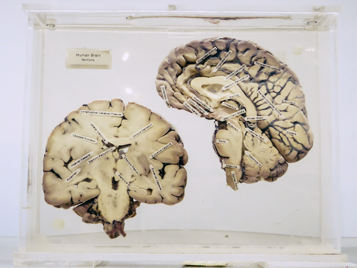 Surgical cross-section of a brain with labeled parts.